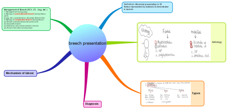 Imindmap breech presentation 4 mind map biggerplate breech presentation 4 ccuart Choice Image